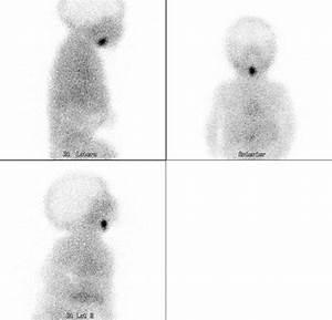 Nuclear Medicine  U0026 Pet  Thyroid Scintigraphy  Paediatric