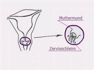Eisprung Nach Ausschabung Berechnen : muttermund abtasten ~ Themetempest.com Abrechnung