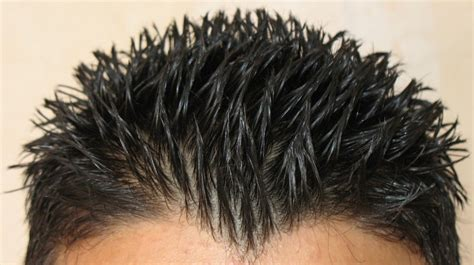 can too much biotin cause hair i am a barber and all inclusive male groomer professional including waxing for 6 years ama
