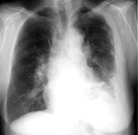 dark lung fields