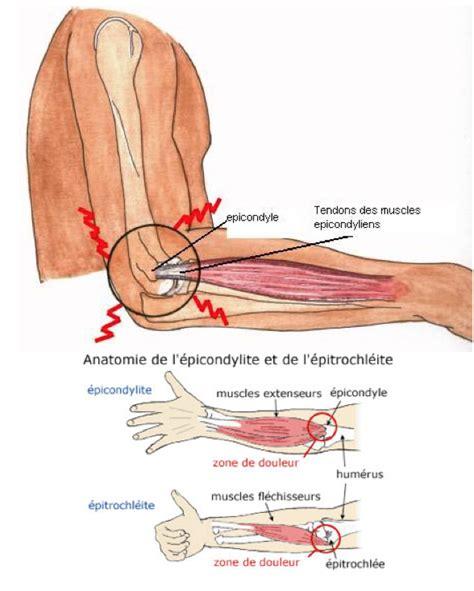 douleur dans le bras droit