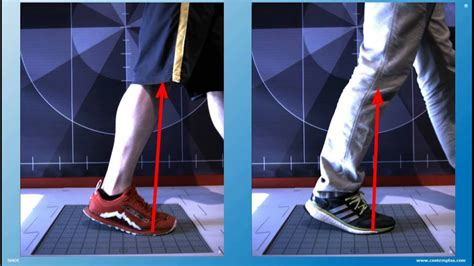 Force Vector Gait Analysis - YouTube