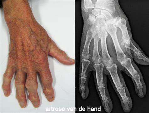 Wat is osteoartrose