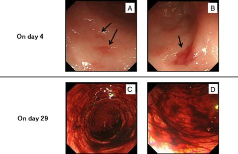 colonoscopy findings colonoscopy images showing patchy