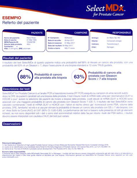 test positivo attendibilità selectmdx la biopsia liquida per il tumore prostatico