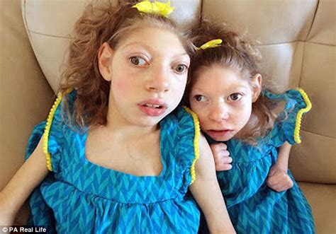 mother  daughters  rare condition linked  zika