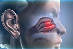 Санаторий станко лечение гипертонической болезни