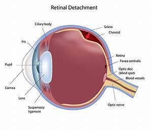 Retinal Surgery Asheville
