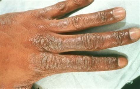 medical dermatology  skin care center  birmingham