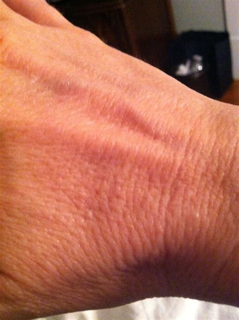 small flesh colored bumps on yesterday i noticed several flesh colored tiny bumps on the