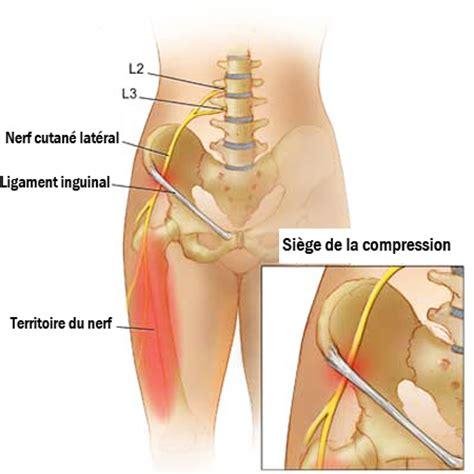 m 233 ralgie paresth 233 sique causes sympt 244 mes et traitement sant 233 orthop 233 dique