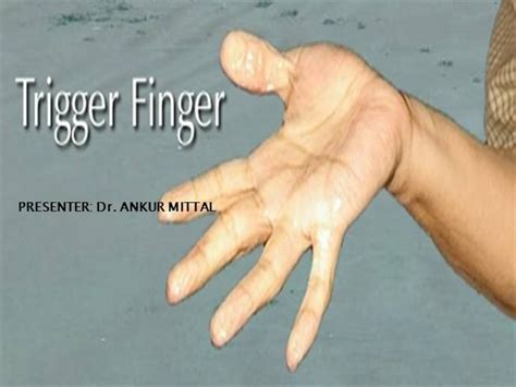 Trigger Finger Diagram by Trigger Finger Authorstream