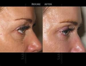 Tear trough natural treatment