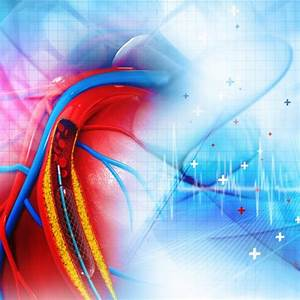U1408 Heart Stent Stock Photos  Royalty Free Stent Photos