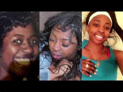 Kenneka Jenkins Crime Photos Close Ups Of Injuries  Doovi