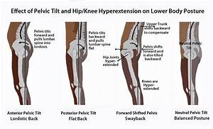 Effect Of Pelvic Tilt And Hip  Knee Hyperextension On Lower Body Posture