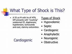 Shock (2)  Sepsis Cardiogenic shock