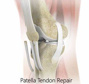 Patellar Tendon Repair Cincinnati | Patellar Tendon Tear ...