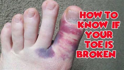 Sprained Toe  Symptoms (vs Broken Big Toe), Treatment. Jai Logo. Bluray Logo. Itchy Skin Signs. Valdez Murals. Bread Murals. Metal Stickers. Ganesha Murals. C Peptide Signs