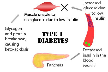 symptoms  diabetes monterey bay holistic