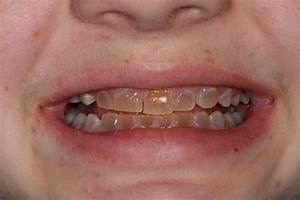 Picture gallery of esthetic dental treatments