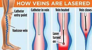 Varicose veins: Goodbye lumpy legs: Laser operation ...