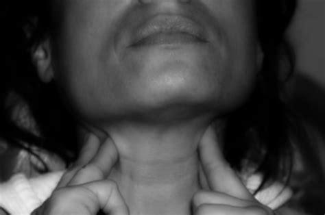 Labbra Interne Sporgenti Cancro Della Bocca Tumore Alla Bocca