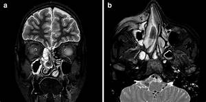Fungal Sinusitis  Magnetic Resonance Image Findings On Immunocompromised Patients