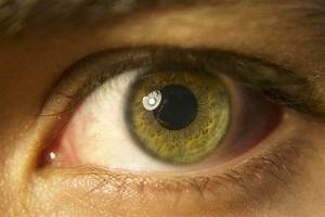 Epilepsy  Looking Into Retinal Inflammation
