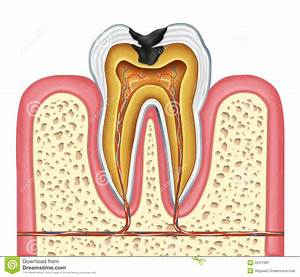 Tooth Inner Anatomy Of A Cavity Royalty Free Stock