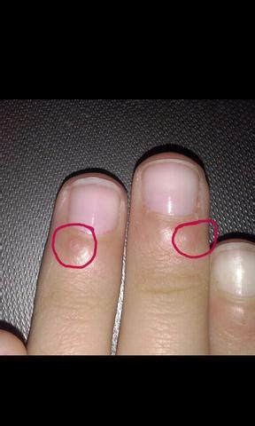 sind das fuer hubbel auf meiner nagelhaut pflege