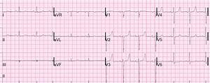Dr  Smith U0026 39 S Ecg Blog  What Is The Diagnosis