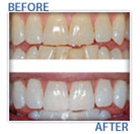 blue light teeth whitening blue light teeth whitening a free way to whiten your