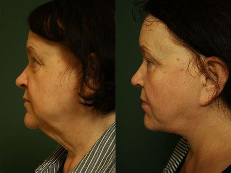 brustvergrößerung fetttransplantation