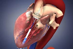 Promising Results In Heart Valve Clinical Trial