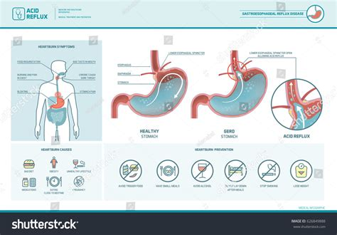 Acid Reflux Heartburn Gerd Infographic Stomach Stock