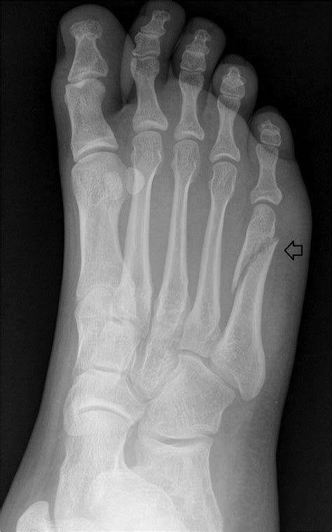 diagnosis  management  common foot fractures
