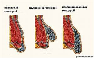 Как лечить геморрой ромашка