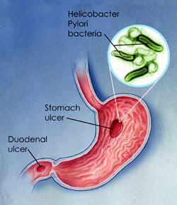 bactérie helicobacter pylori symptomes helicobacter pylori atlanta gastroenterology associates
