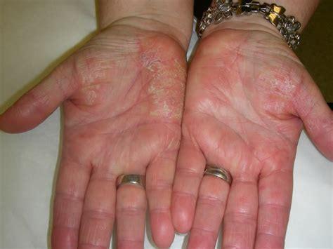 bureau plus ca wsiat documents de travail médicaux la dermatite de