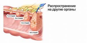Сужение ануса после операции на геморрой