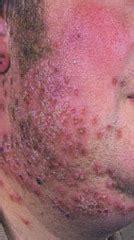 sbj  morphology  skin lesions crc flashcards quizlet