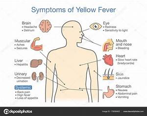 Diagram Symptoms Yellow Fever Patient Illustration Disease