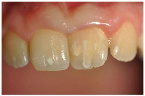 celiac disease   oral health westermeier martin
