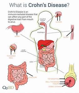 Understanding Crohns Disease