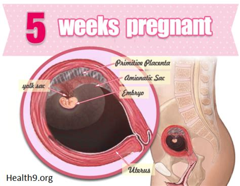 5 Weeks Pregnant  Symptoms, Signs, Pictures, Tips, What. Monogrammed Business Cards Gre Courses Boston. Medicaid Hospital Coverage Track Pc Activity. How Much Does It Cost To Get A Nursing Degree. Free Phone Conference Calls Lms In Education. Natural Remedies Bed Bugs Cheap Web Design Uk. Florida Traffic Ticket Attorney. Child Advocacy Houston Umuc Withdrawal Policy. Are Online Colleges Worth It