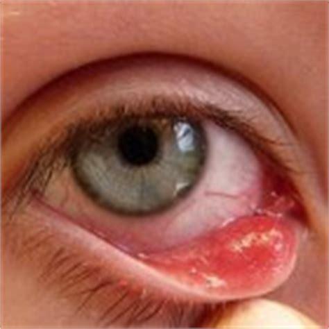 Dikke ogen: oorzaken van zwelling en vocht onder de ogen mens