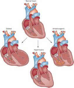 Dilated cardiomyopathy : the  Dilated cardiomyopathy Cardiomyopathy