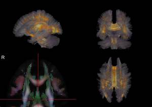 How The Brain U0026 39 S Wiring Leads To Cognitive Control