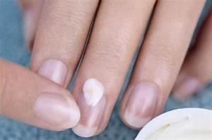 Ацикловир мазь от грибка ногтей